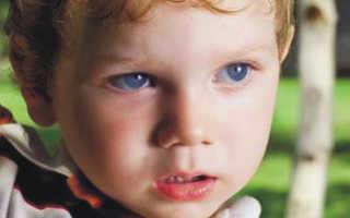 Ребенок 2 года не разговаривает