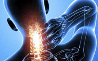 Гиперостоз лобной кости костей черепа и других костей