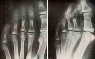 Остеохондропатия плюсневой кости стопы у ребенка и взрослого
