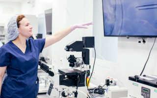 Синдром гиперстимуляции яичников при эко
