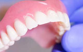 Зубные протезы при полном или частичном отсутствии зубов