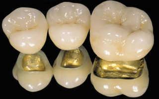 Аллергия на зубной протез в полости рта