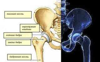 Подвывих тазобедренного сустава у взрослых