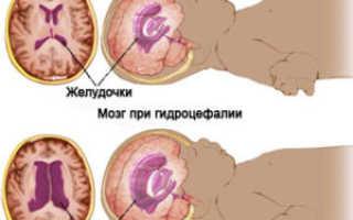 Можно ли вылечить внутричерепное давление у грудничка и почему у малыша повышается внутричерепное давление — причины, симптомы и лечение