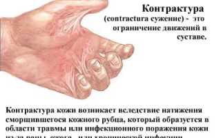 Контрактура тазобедренного сустава