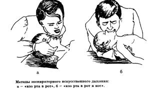 Алгоритм сердечнолегочной реанимации у детей и взрослых