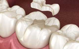 Какие считаются лучшими зубные пломбы