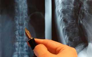 Как подготовится к рентгену позвоночника