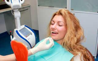 Профессиональное отбеливание зубов системой beyond polus