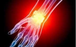 Лечение артрита лучезапястного сустава