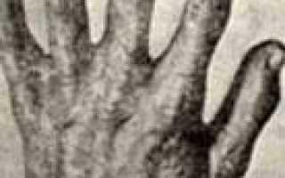 Акрогерия семейная синдром готтрона