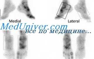 Что такое сцинтиграфия костей и органов