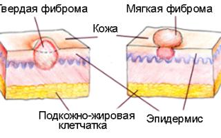 Доброкачественные новообразования на коже