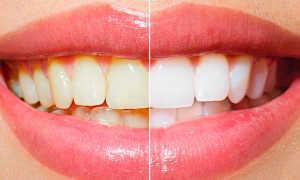 Эндоотбеливание зубов внутрикоронковое отбеливание