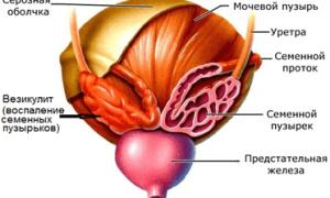 Боль во время семяизвержения у мужчин болезненная эякуляция
