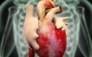 Диабетическая кардиомиопатия при сахарном диабете 1 2 типа