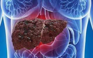 Ожирение печени: причины, симптомы и лечение