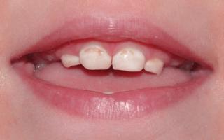 Серебрение зубов у детей при кариесе молочных зубов