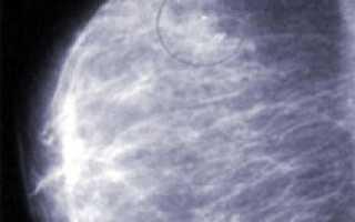 Фиброзирующий аденоз молочной железы