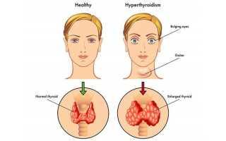 Как расшифровать узи щитовидки при подозрении на диффузный зоб
