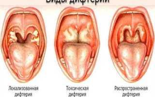 Осложнения после прививки от дифтерии кори и краснухи полиомиелита гепатита
