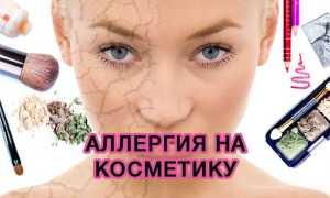 Аллергия на косметику на лице на глазах