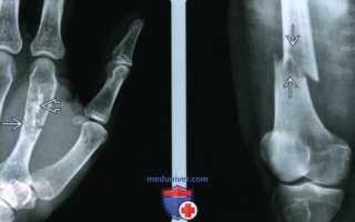 Патологический перелом бедренной кости