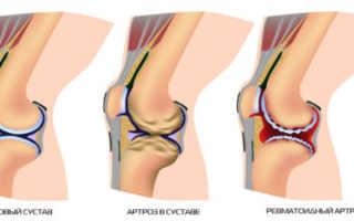 Посттравматический артроз коленного сустава