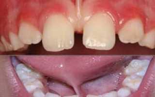 Короткая уздечка языка верхняя и нижняя уздечка