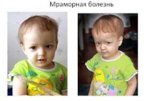 Мраморная болезнь у детей и взрослых