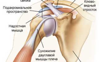 Болит плечо при поднятии руки вверх