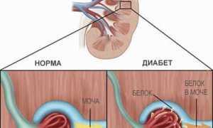 Белок в моче при сахарном диабете