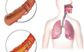 Посев мокроты на туберкулез
