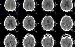 Рентген и кт головы при головных болях