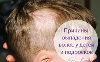 Почему у ребенка выпадают волосы на голове или сильное выпадение волос у детей — основные причины и что делать