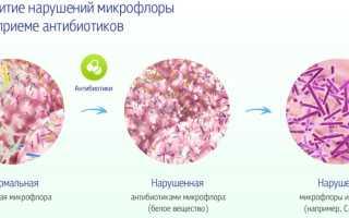 Что принимать для восстановления микрофлоры после антибиотиков
