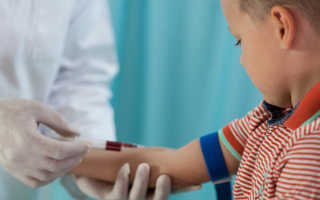 Как правильно делать забор крови из вены