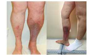 Посттромбофлебитическая болезнь вен нижних конечностей
