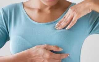 Гормонозависимый рак молочной железы