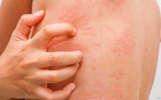 Сыпь на коже сопровождающаяся зудом и болевыми ощущениями