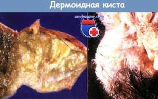 Дермоидная киста тератома яичника