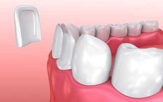 Преимущества и недостатки виниров на зубы