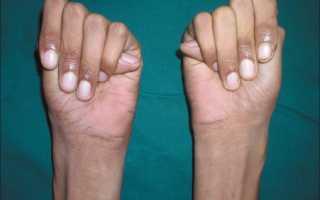 Арахнодактилия синдром марфана болезнь паучьих пальцев
