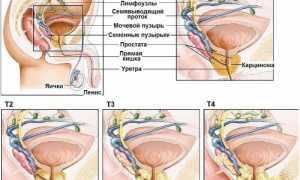 Лучевая терапия при раке простаты 1 2 3 степени