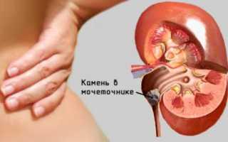 Уретерит (воспаление мочеточника)