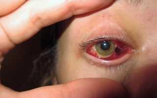 Отслоение и дегенерация сетчатки глаза