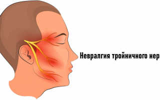 Невралгия тройничного нерва лица