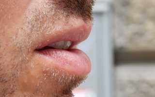 Почему у ребенка пахнет изо рта — причины