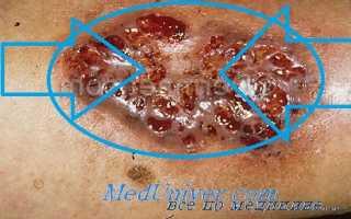 Гангренозная пиодермия на руках и ногах