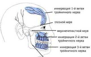 Неврит (невралгия) лицевого нерва